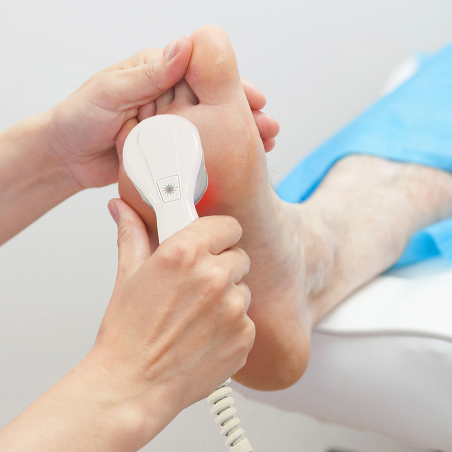 Aspen Laser Treatment Foot